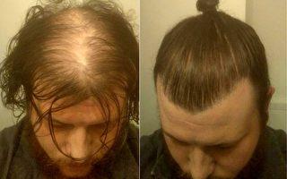 男子绑发髻遮秃顶 没想到露馅的风险这么大