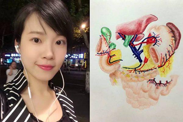 画了一张十二指肠解剖图,让浙江女医师傅志勤红透互联网。(微博图片/大纪元合成)