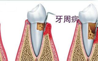 牙周病就是牙齦發炎以後,細菌引起牙床開始收縮、破壞,牙床收縮。(NTD視頻截圖)