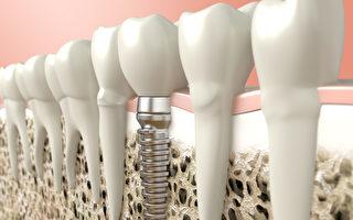 紐約大學牙科博士楊健說,在植牙時醫生要幫患者做好三項功課。(Shutterstock)