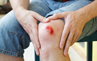 鼻血、便血、割伤流血⋯⋯哪里出血要重视?(Shutterstock)