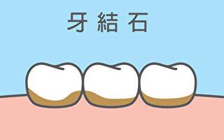 牙結石要怎樣預防、治療?(Shutterstock)