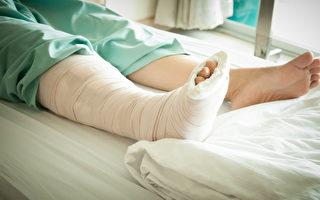 「骨質疏鬆症」屬於無感疾病,5成患者發生骨折等嚴重症狀後才就醫確診。(Shutterstock)