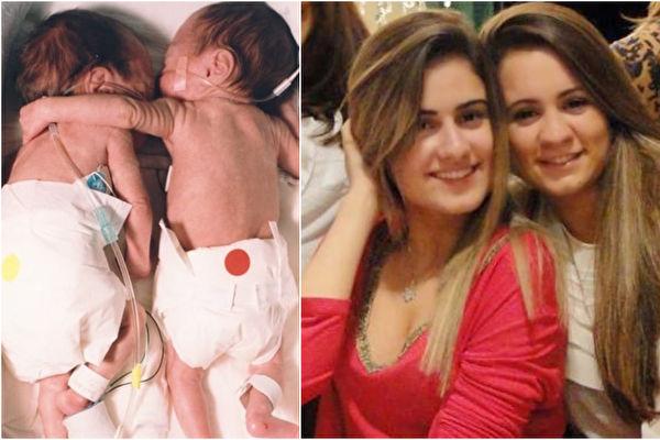 布里埃尔和柯瑞尔·杰克森这对双胞胎姊妹一出生即面临生死离别,幸好后来结局圆满。如今姊妹俩已经变成婷婷玉立的大学生了。(视频截图/大纪元合成)