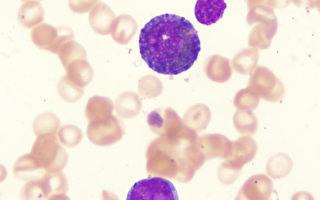 人每天製造幾十萬癌細胞?防癌重在免疫力
