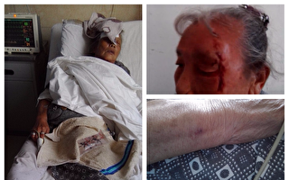 四川攀枝花市72歲老人因拆遷安置問題信防遭攀煤集團員工毆打重傷。(蔣福提供)