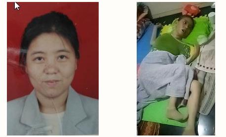 张印香被迫害前后照片对比(明慧网)