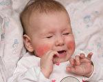 父母應預防寶寶被電燒傷擊傷。(Shutterstock)