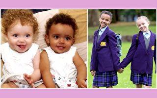 英国黑白双胞胎11岁了 父母超自豪:她们总让你笑