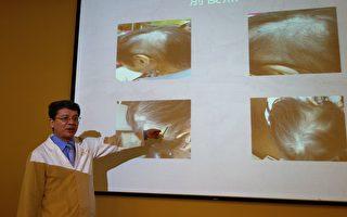 中年男子鬼剃頭 中醫辯證治療長黑髮