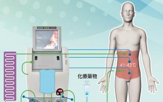 溫熱療法 腹膜癌末治療新選擇