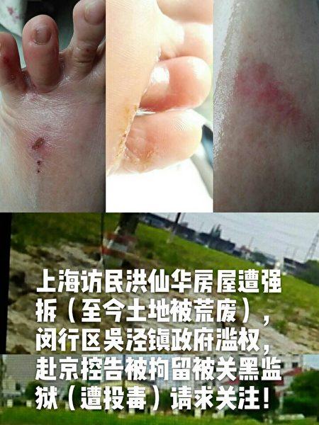 宏先华十九大时以死抵抗才免被关黑监狱。此前被迫穿黑监狱拖鞋,导致脚步腐烂发烧一周,住院2个月才痊愈。此次蒙古旅游回来北京转站被无故遭关押。(访民提供)