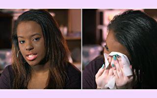少女脸上盖满厚厚粉底 7年后终获勇气展露本来的自己