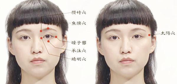可以改善黑眼圈的眼周穴位:攢竹穴、魚腰穴、瞳子髎、承泣穴、睛明穴和太陽穴。(談古論今話中醫提供)