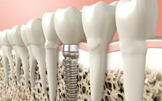植牙耐久實用 平價享受韓裔牙醫星級技術