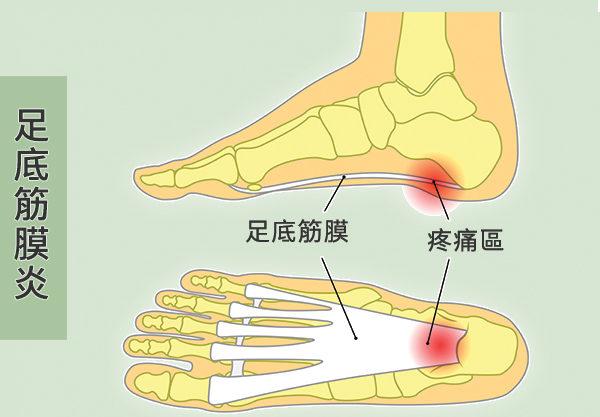 足底筋膜,就是连结脚趾骨和脚跟骨的厚厚一层组织带。(Shutterstock/大纪元制图)