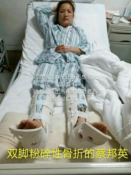 蔡邦英两会期间被摔成双脚粉碎性骨折。(知情人提供)