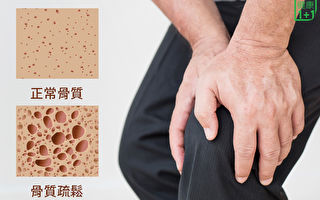 35歲後警惕骨質疏鬆 藥師公開選鈣片祕訣