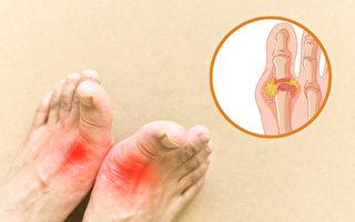 尿酸是关节大敌!痛风防治 必须注意4件事
