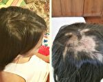 10歲女孩的禿頭神奇痊癒 母女因禍得福