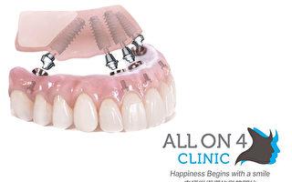 全口植牙重建:康復過程揭密及收費標準