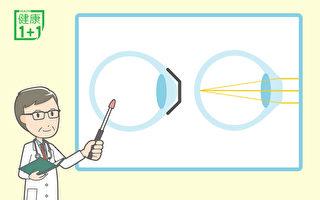 怎样防近视加深?睡觉时救视力的角膜塑型镜