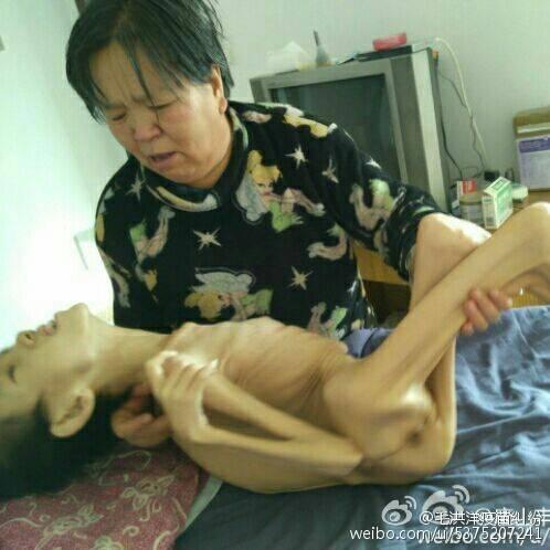 河北唐山市接種疫苗致腦殘患兒毛毛,後期五臟衰竭瘦骨嶙峋。於2017年6月離世。(圖片家長提供)