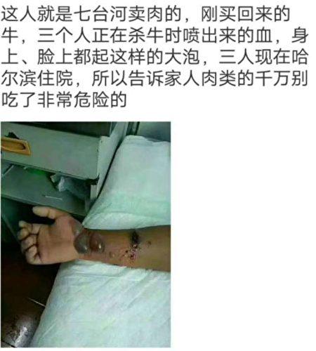 当地居民拍下感染上羊炭疽病患者的照片。(知情人提供)