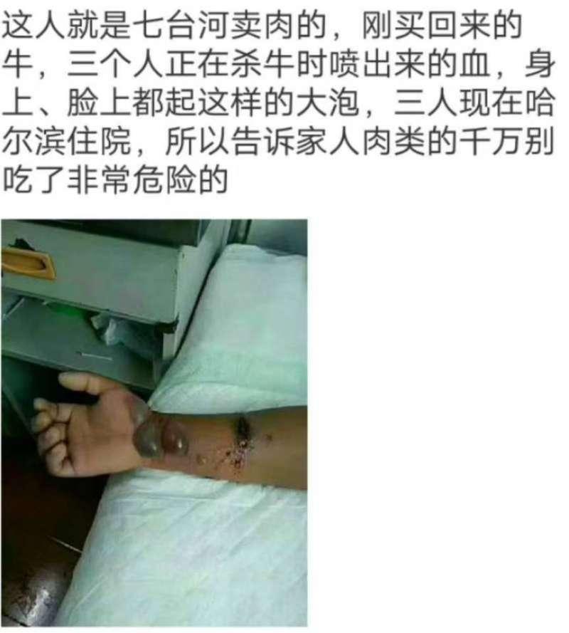 當地居民拍下感染上羊炭疽病患者的照片。(知情人提供)