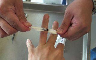 戒指卡住手指怎么办?医师1招轻松取下