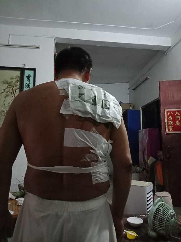 李碧雲弟弟也被打傷。(受訪者提供)