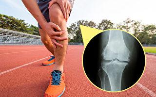 运动会不会造成膝盖退化?医师完整解析