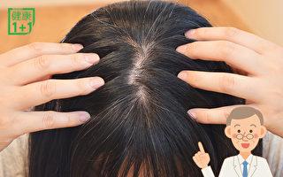 頭髮越來越少?中醫薦2碗藥膳養回濃密黑髮