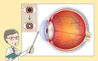 失明第一原因 白內障如何預防和保養?