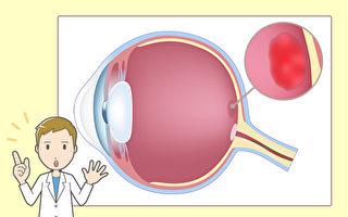 眼睛出現2症狀 小心黃斑部病變 中醫治療有妙招
