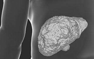 肝硬化能恢复正常吗?