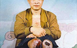 常忍:中共灭绝人性 迫害残疾好人