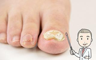 灰指甲易传染 指甲变黄变厚 这样做有效预防