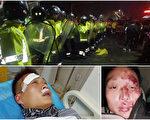 1月11日,江苏金湖县接种过期疫苗的儿童家长抗议升级,图为被打伤的家长。(受访者提供)