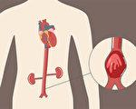 腹主動脈瘤多無症狀,高風險人群應該儘早做檢查。