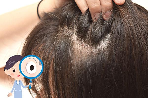 一些矿物质的缺乏,会导致掉发、头发失去光泽。养发应该吃哪些食物?