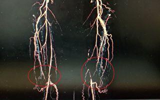 罕见双侧腿部血管全塞住  都是抽烟惹的祸