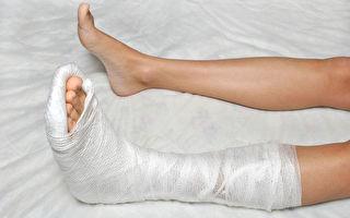 有些人骨折復原比其他骨科傷患費時更久、速度更慢。西醫師解析影響骨骼修復的不利因素,並談相應的治療對策。