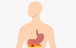 急性胰臟炎「上腹痛」是主要症狀 預防注意3點