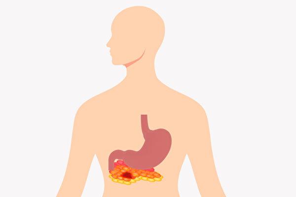 急性胰脏炎的症状包括严重的上腹痛、恶心呕吐等。如何预防?(Shutterstock)