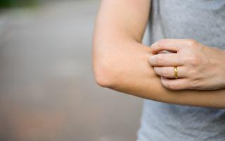 负面情绪或压力可能让皮肤病况更严重或引发诸如荨麻疹、皮肤潮红、湿疹等皮肤状况。