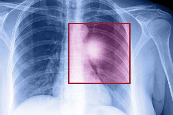 低劑量電腦斷層掃描能有效篩查出早期肺癌,可降低20%的肺癌死亡率。(Shutterstock)