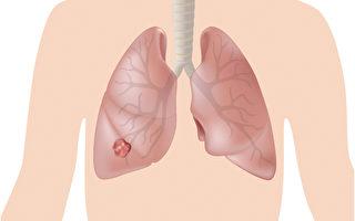肺癌的最新治疗方法包括靶向治疗和免疫治疗。(Shutterstock)