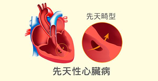 先天性心脏病指的是心脏在成形发育时受到阻碍,未必是遗传。