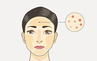 不同部位長痘,是相應的臟腑有火、熱等問題,中醫如何治療痘痘?(Shutterstock/大紀元製圖)